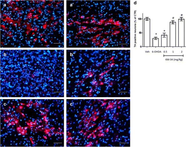 CIDEM 112: Первая в своем классе молекула, перспективная для лечения болезни Альцгеймера.